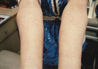 ④【手湿疹】腕にも拡がり治らない