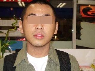 ⑥【顔】子供の時からアトピー性皮膚炎 顔の色素沈着