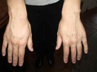 ⑥【手湿疹】10年前から手湿疹、手の平・手の甲が真っ赤に