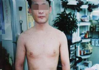 ③【上半身】子供の頃からアレルギー体質 上半身の皮膚炎
