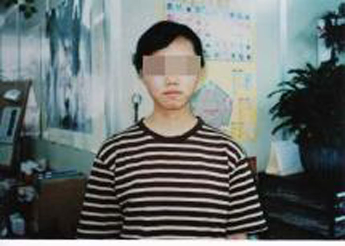 ⑨【顔と首】小さい頃から皮膚が弱い、口の周り、首の湿疹