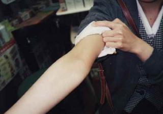 ⑩【腕】小さい頃から敏感肌、上半身と手の症状