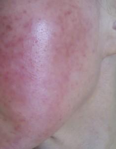ステロイド 副作用 顔 治し 方