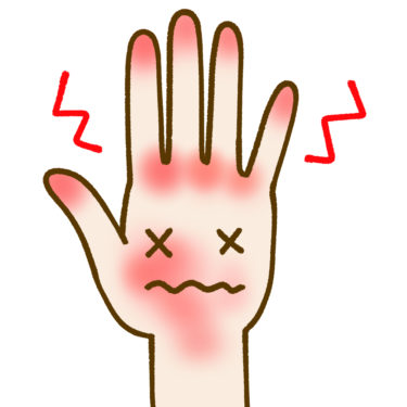 ①【掌】赤く、亀裂が入り皮膚がむけている