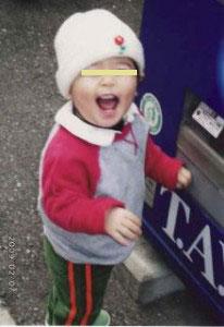 ⑤【顔】生後3ヶ月、顔を中心にブツブツの湿疹が拡がる